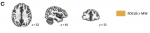 Hasenkamp etal 2012 Fig 2C