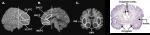 PFC Cingulate amygdala insula
